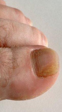 Hamilton Podiatrist | Hamilton Onychomycosis | NJ | Hamilton Foot Care Center |