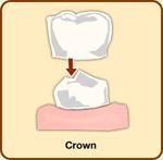crowns.jpg