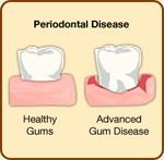 periodontal.jpg