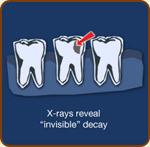 x_rays.jpg