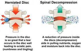 Fairfax Chiropractor | Fairfax chiropractic What is spinal decompression? |  VA |