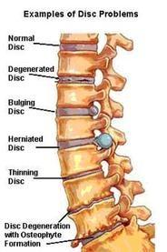 Fairfax Chiropractor   Fairfax chiropractic What is spinal decompression?    VA  