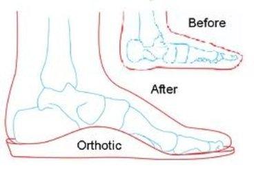 Fairfax Chiropractor   Fairfax chiropractic Custom Foot Orthotics    VA  