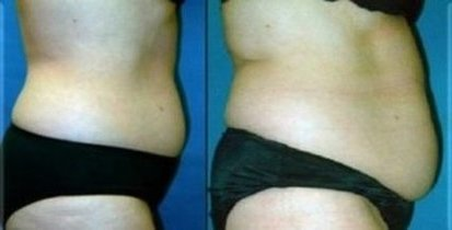 Dublin Weight Loss | Dublin chiropractic Before & After Pics |  CA |