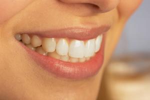 smiling_teeth.jpg