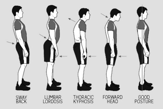 posture2.png