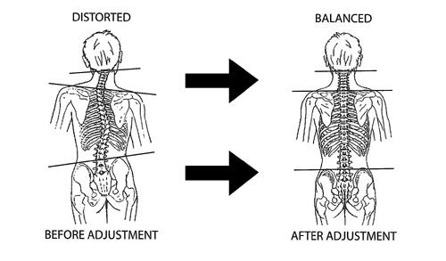 spinalscan.jpg