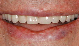 dentures_after.jpg