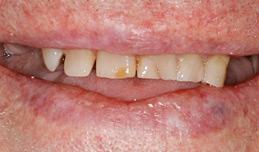 dentures_before.jpg