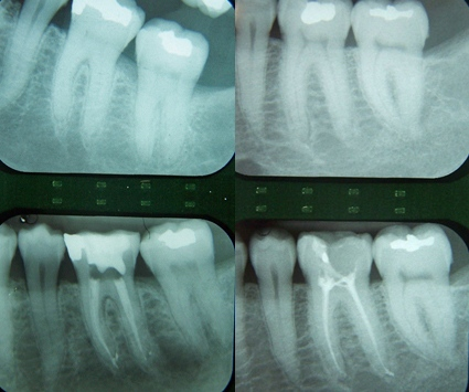 Dental in Linthicum MD