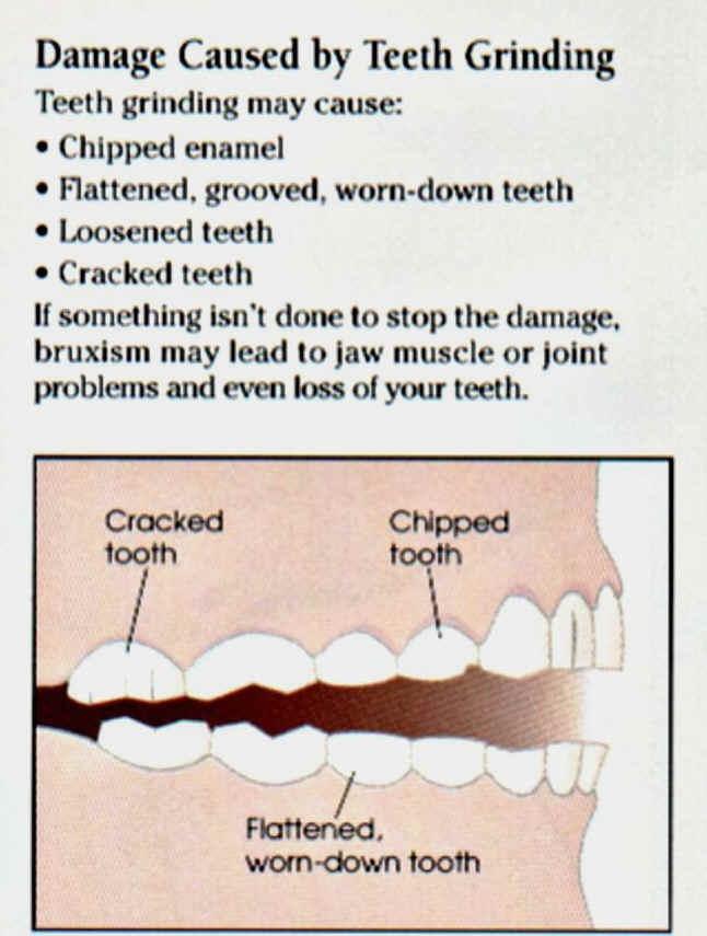 Grinding damages teeth