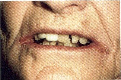 Angular  chelitis is often mistaken for cold sores