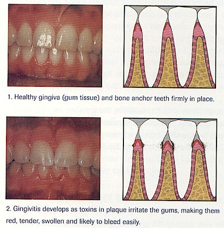 Gingivitis ...note there is no bone loss