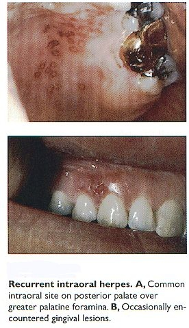 Cold  sores/herpes can occur in the mouth too