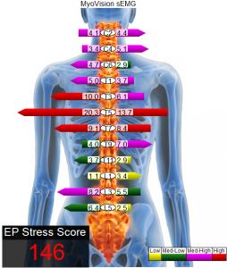 Castle Rock Chiropractor   Castle Rock chiropractic EMG Spinal Scan    CO  