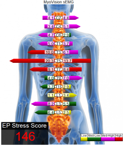 Castle Rock Chiropractor | Castle Rock chiropractic EMG Spinal Scan |  CO |