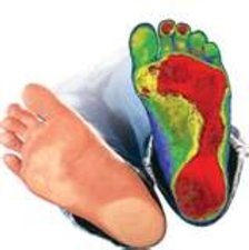 Castle Rock Chiropractor | Castle Rock chiropractic Hydrothotic Foot Orthotics |  CO |