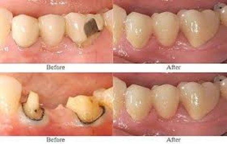 Chicora Dental Care, LLC in Chicora PA
