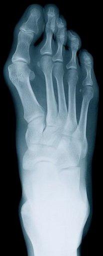 Scranton Podiatrist | Scranton Rheumatoid Arthritis | PA | Richard T. Meredick, DPM, PC |