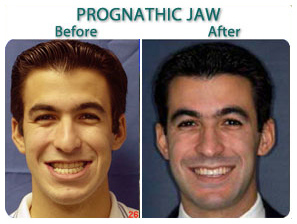 before_after_prognatic_jaw_a.jpg