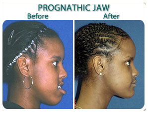 before_after_prognatic_jaw_fg.jpg