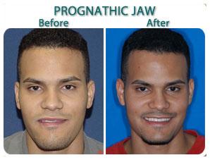 before_after_prognatic_jaw_jk.jpg