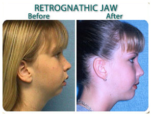 before_after_retrognathic_jaw_a.jpg