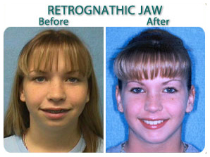 before_after_retrognathic_jaw_bc.jpg