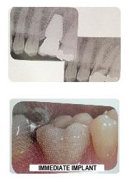 implants_1.jpg