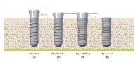 implants_2.jpg
