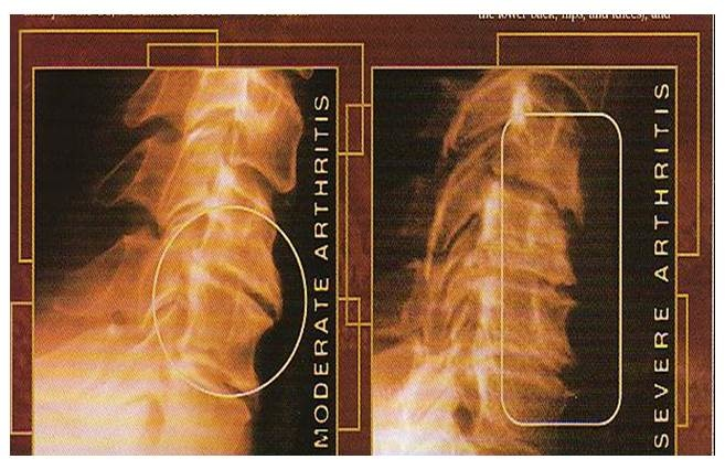 x_ray_joint2.jpg