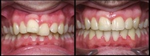 Misaligned_teeth.jpg