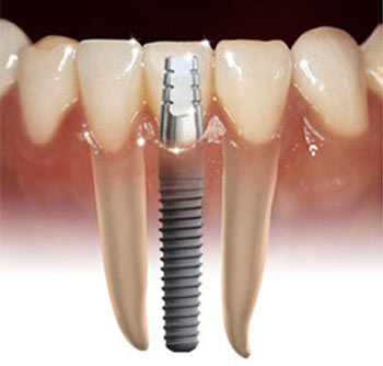 Plantation_Dental_Implants.jpg