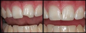dental_bonding.jpg