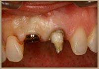 implant_bef1.jpg
