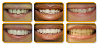 smile_gallery_preview.jpg