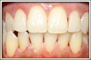 teeth_cleaning_2.jpg
