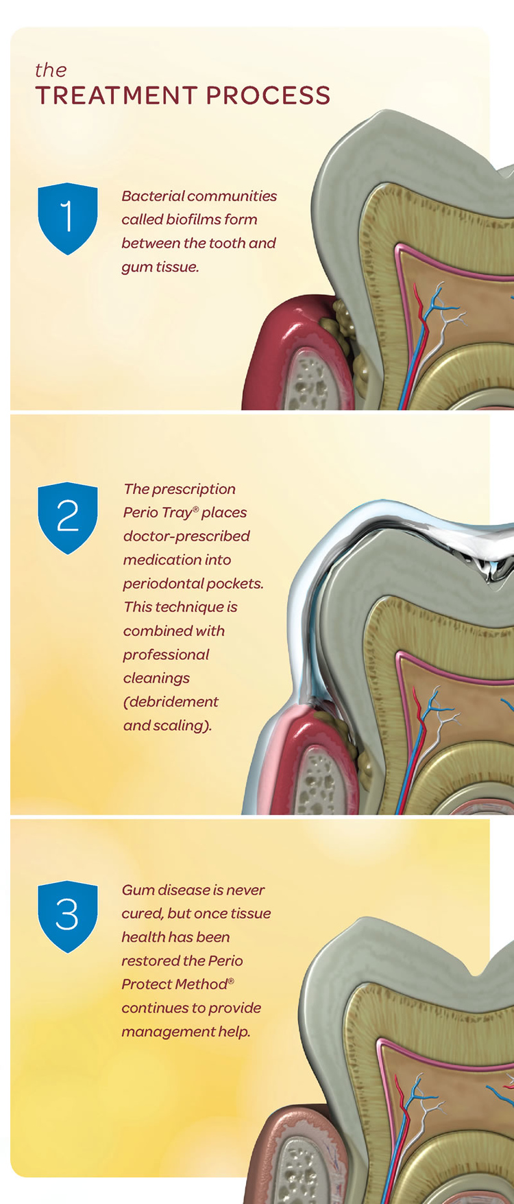 Treatment_Process.jpg