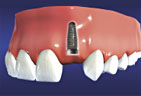 implants2.jpg