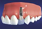 implants3.jpg