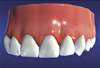 implants4.jpg