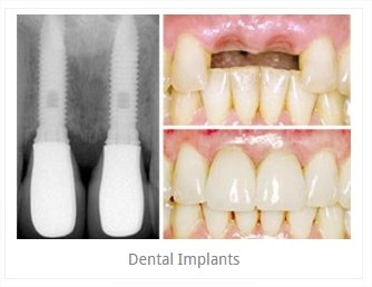 Dental_implants2.jpg