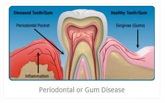 periodontal_disease.jpg
