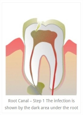 root_canals_1.jpg