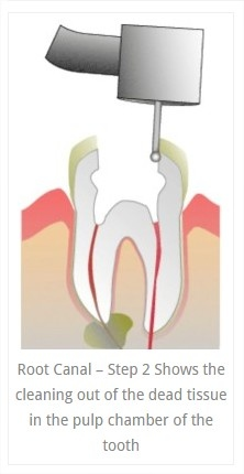 root_canals_2.jpg