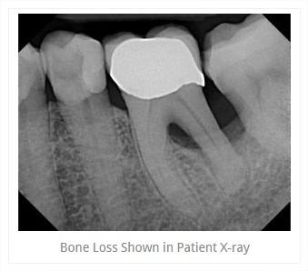 x_ray2.jpg