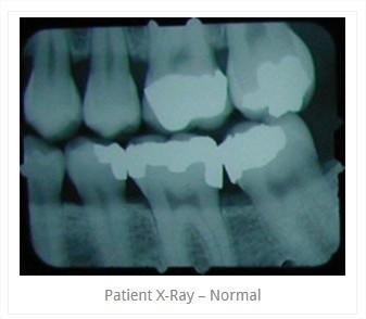 x_ray4.jpg