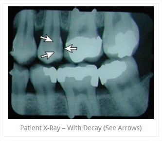 x_ray5.jpg