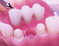 dental_bridges.jpg