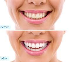 dental_11_sm.jpg
